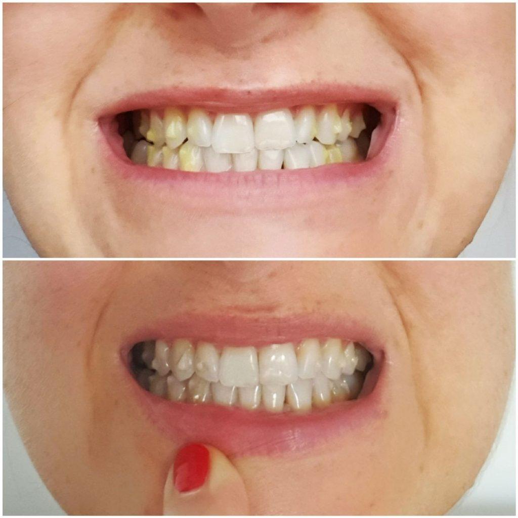 piękne zęby przed i po