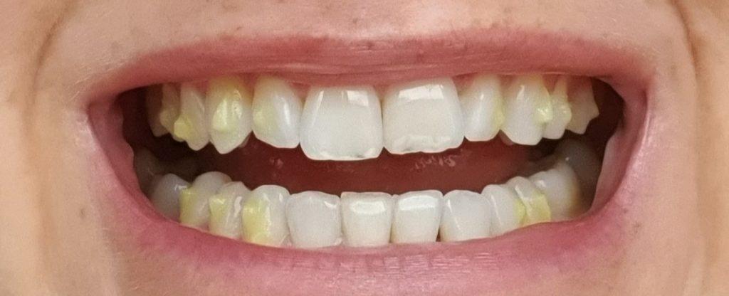 piękne zęby start Invisalign