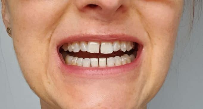 piękne zęby stripping