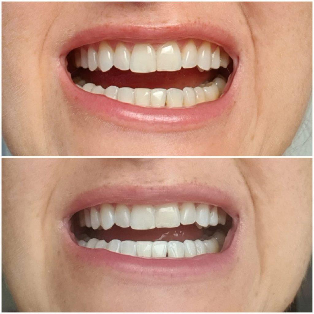 projekt piękne zęby wybielanie